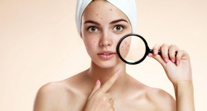 Are Retinoid Based Acne Treatments Such As Tretinoin And Accutane