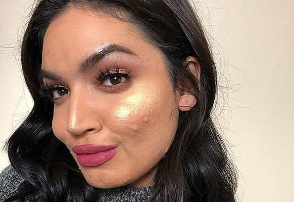 L'Oréal rejects Instagram star for campaign over 'skin issues'