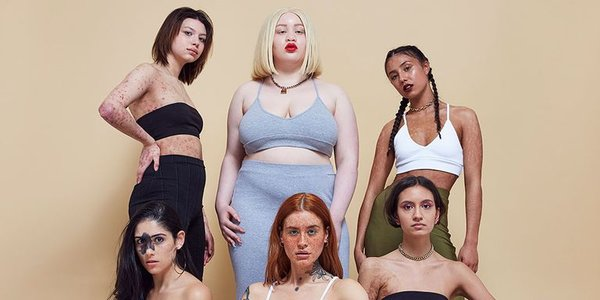 Missguided launches new campaign #inyourownskin to tackle the ideology of 'normal' skin