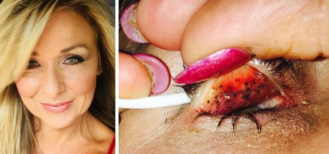 Woman contracts rare illness after failing to remove mascara for decades