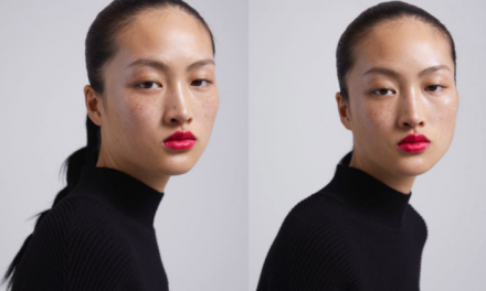 Zara freckle ad sparks China backlash, but is this a racism cry gone too far?