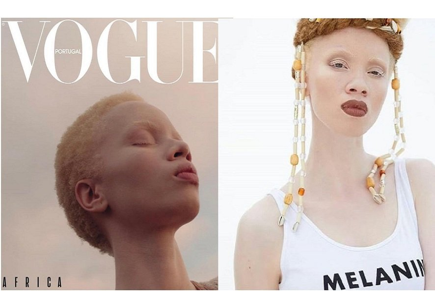 Vogue Portugal puts first albino model on cover