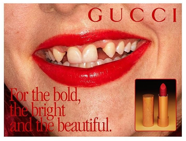 Inclusivity's last frontier? Gucci's lipstick campaign praised for dental diversity