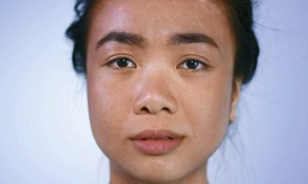 Dove challenges stigma attached to skin conditions with new Singapore ad